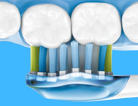 Как укрепить дёсна и зубы – правильный уход за своими зубами