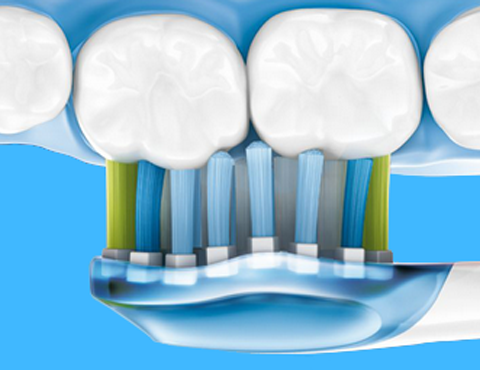 Як зміцнити ясна і зуби. Як правильно доглядати за своїми зубами