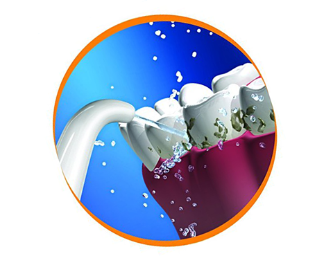 Профілактика ясен і використання іригатора порожнини рота під час стоматологічного лікування