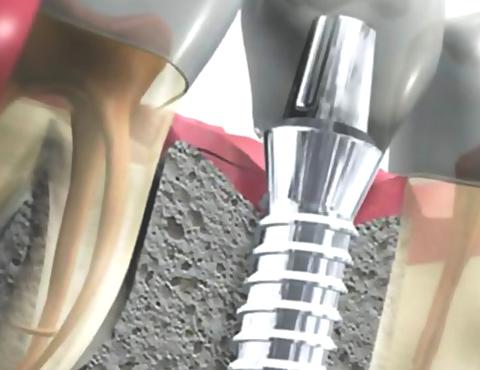 Сучасний іригатор порожнини рота і догляд за імплантами зубів