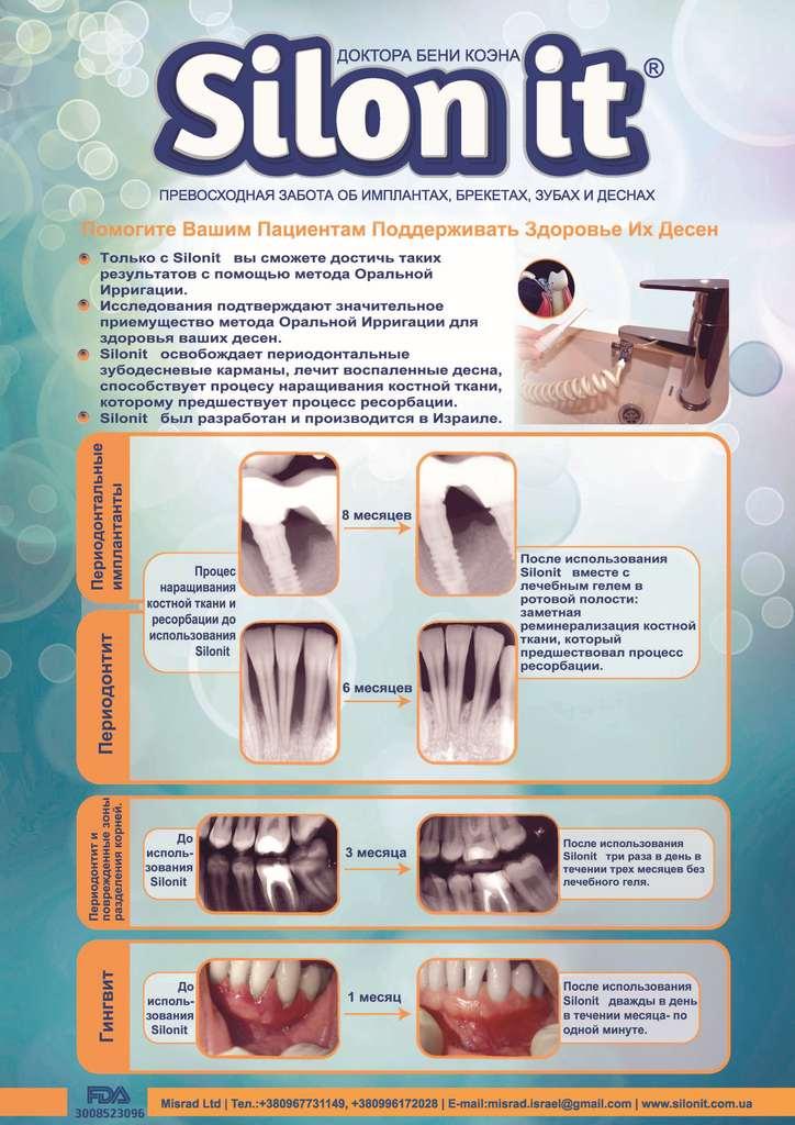 Іригатор для зубів Silon it ефективність доведена